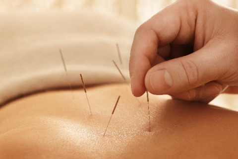acupuncture-free-introduction-college-park